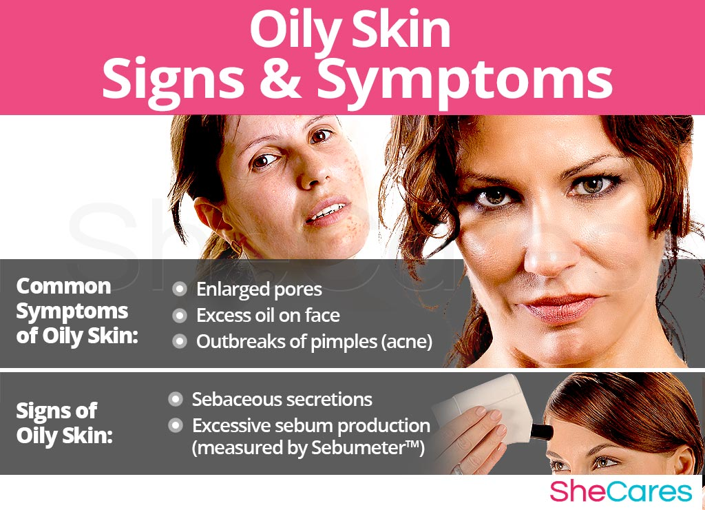 Oily Skin - Signs and Symptoms