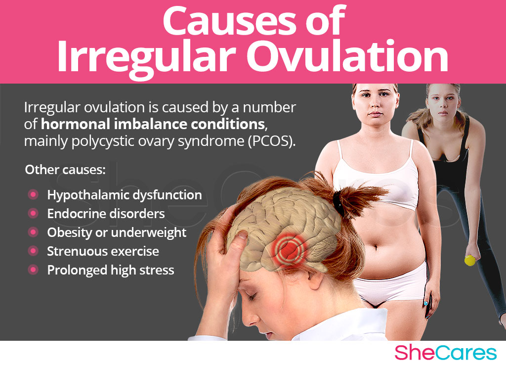 Causes of irregular ovulation