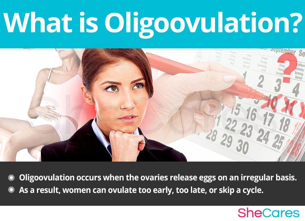 What is oligoovulation
