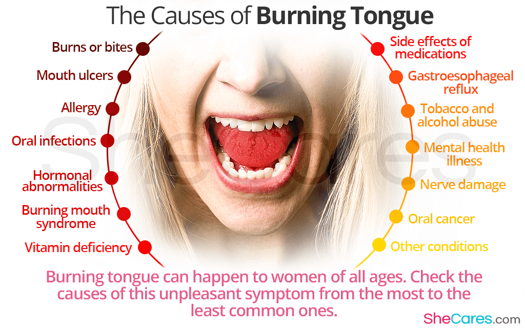 Causes of Burning Tongue: Most Common to Less Common