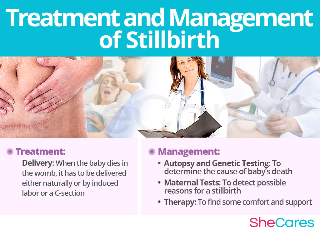 Treatment and Management of Stillbirth