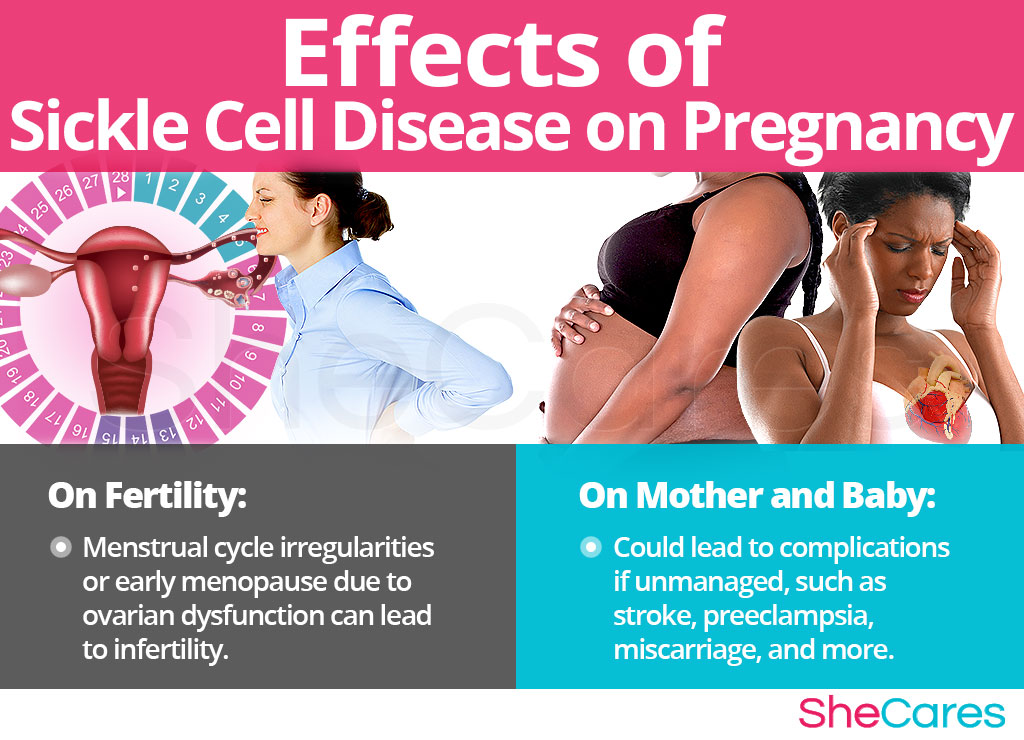 Effects of Sickle Cell Disease on Conception