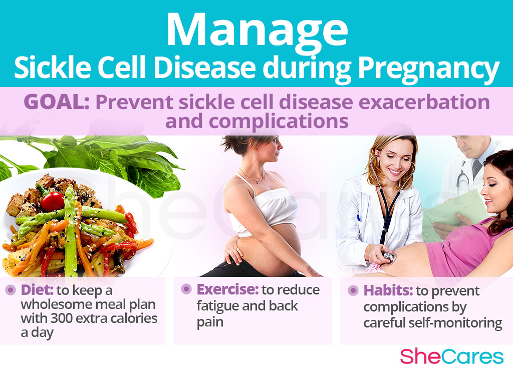 Manage Sickle Cell Disease during Pregnancy