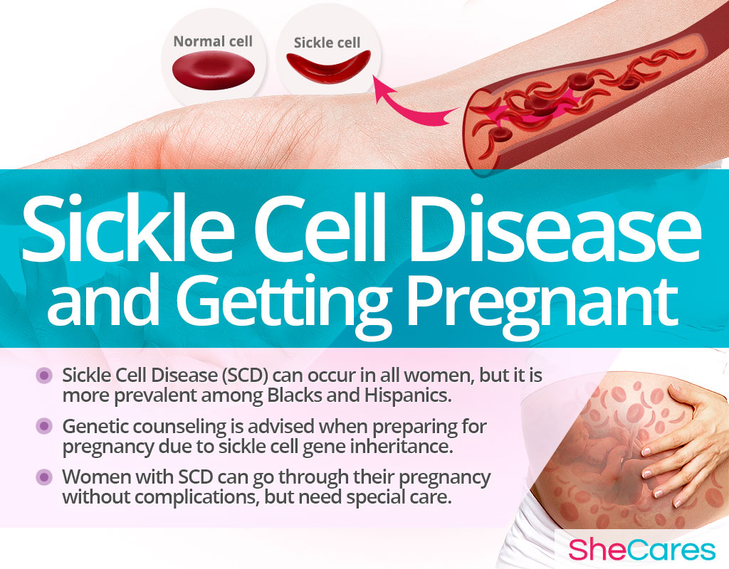 Sickle Cell Disease and Getting Pregnant