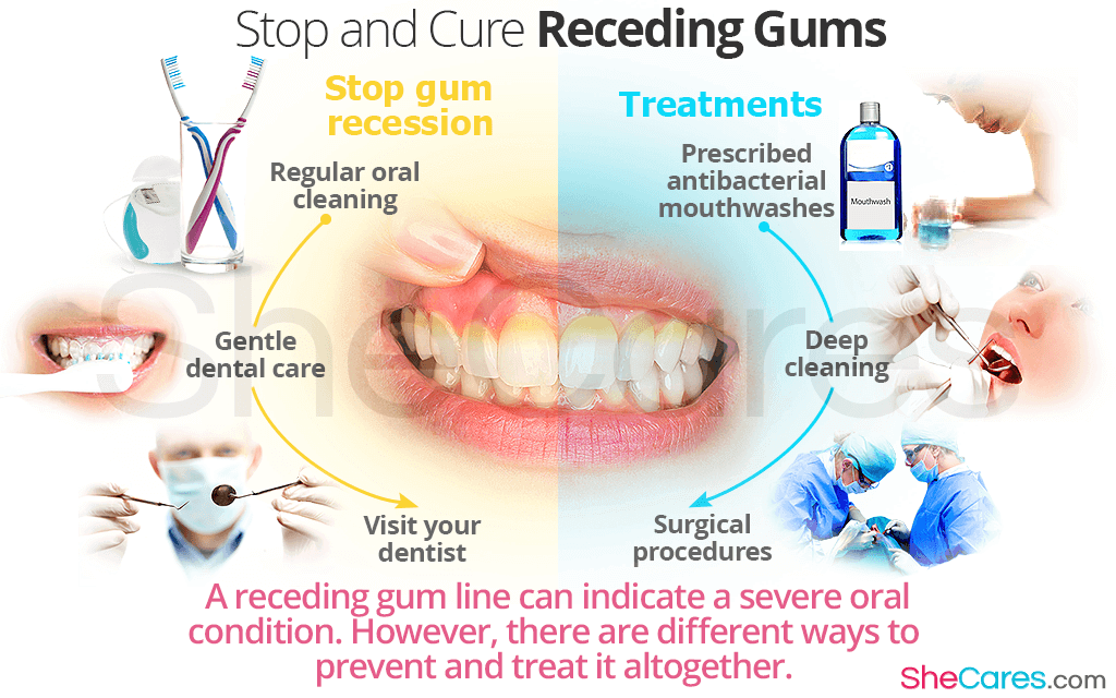 A receding gum line can indicate a severe oral condition. However, there are different ways to prevent and treat it altogether.