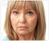 Women entering menopause have a wide array of choices for treatment.