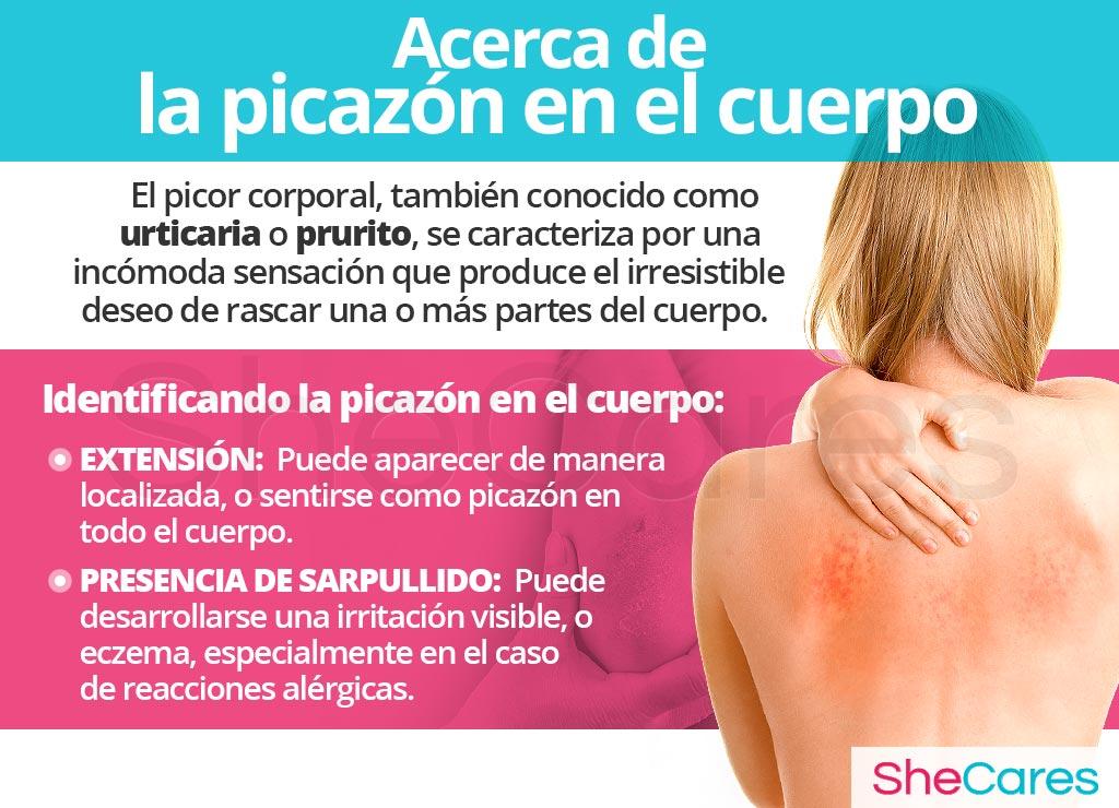 Acerca de picazón en el cuerpo (prurito)