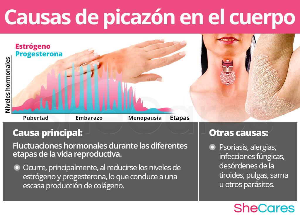 Causas de picazón en el cuerpo (prurito)