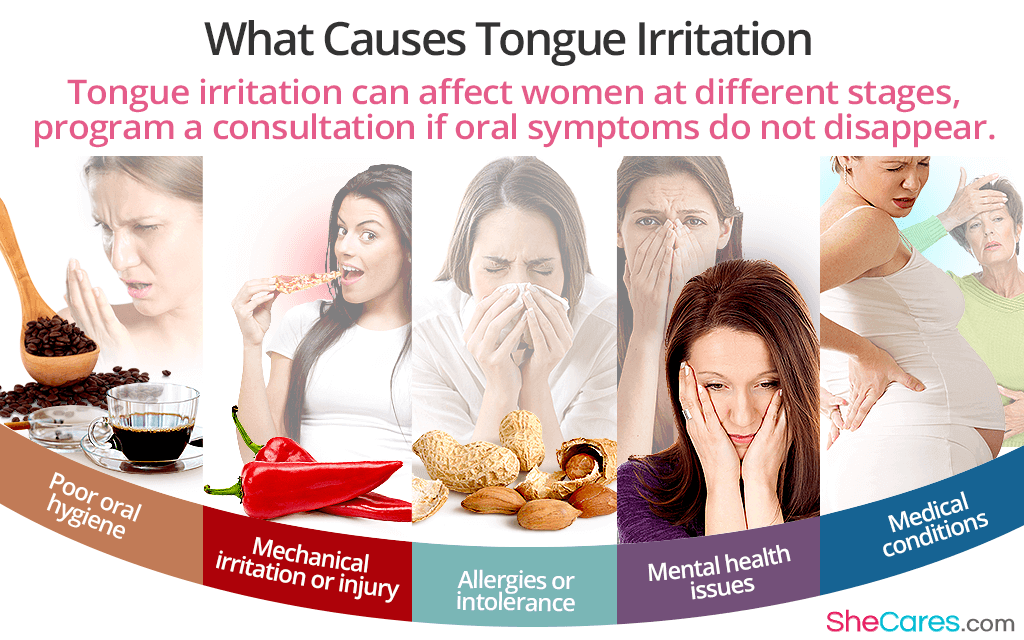 Tongue Irritation FAQs