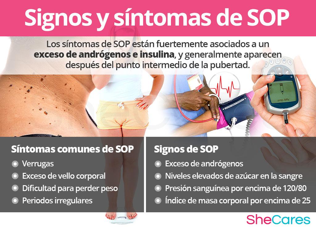 Signos y síntomas de SOP