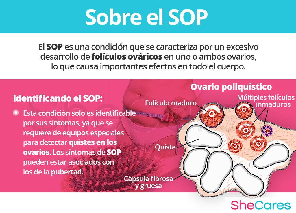 Acerca del síndrome de ovario poliquístico SOP