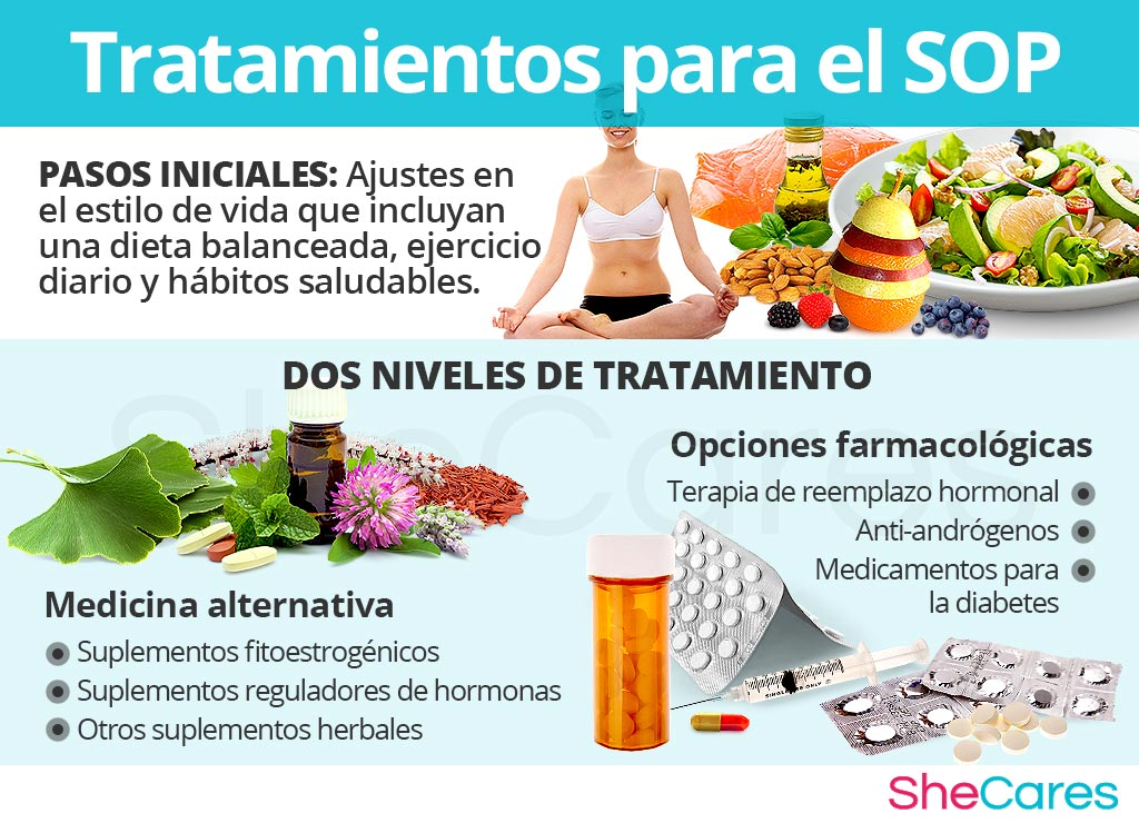 Tratamientos para el SOP