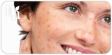 Testosterone therapy can result in side effects such as acne