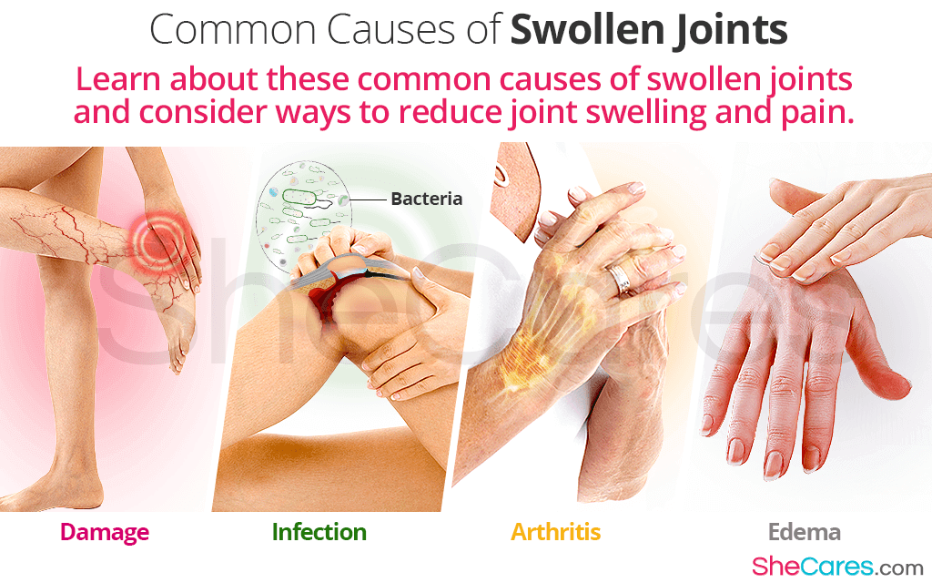 Common Causes of Swollen Joints