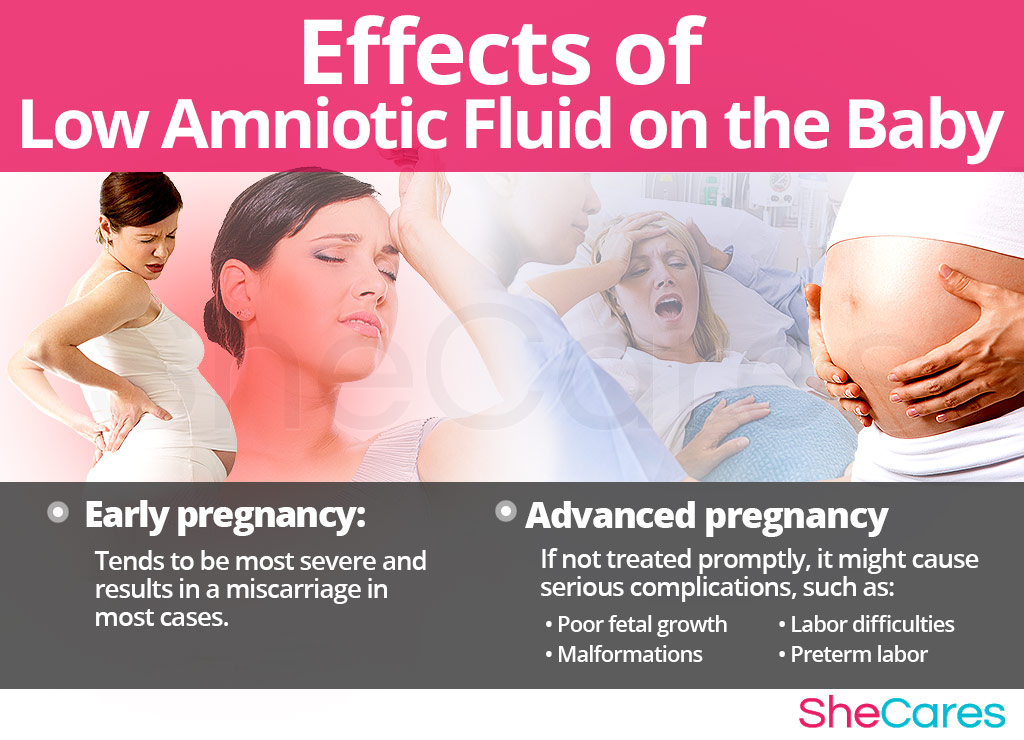 Effects of Low Amniotic Fluid on Pregnancy